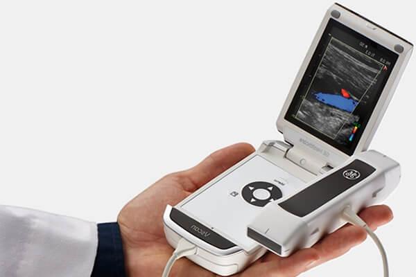 Сканер УЗИ Vscan с двухсторонним датчиком