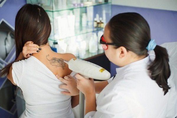 Основные способы удаления татуировок