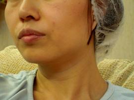 Противопоказания для плазмолифтинга лица