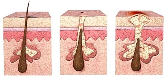 Причины появления угревой сыпи